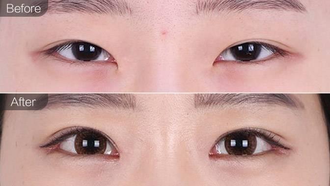 外眼角疤痕明显